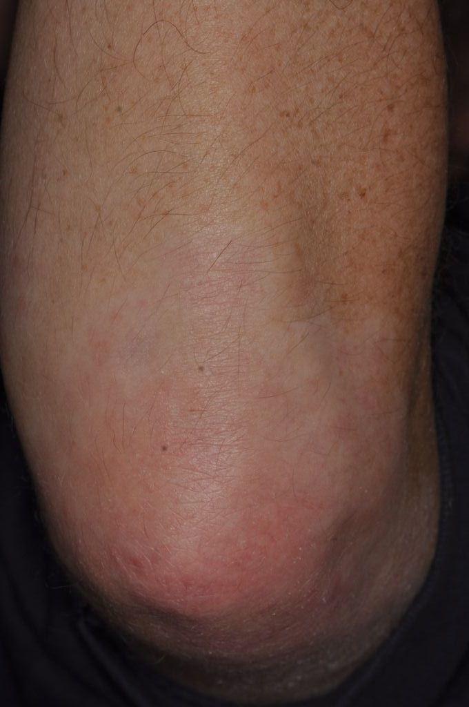 Albue før behandling
