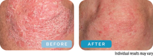 Ganodex before and after
