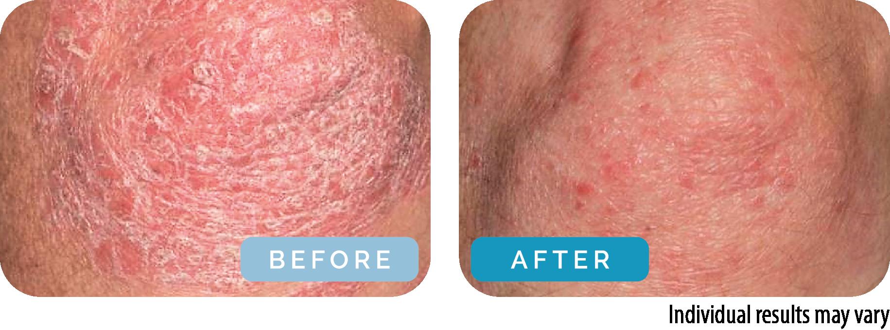 Kløe hud Tør hud